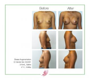 dr-vande-ven breast-augmentation 06