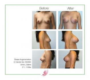 dr-vande-ven breast-augmentation 07