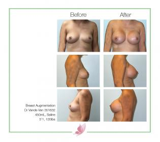 dr-vande-ven breast-augmentation 08