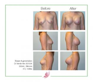 dr-vande-ven breast-augmentation 09