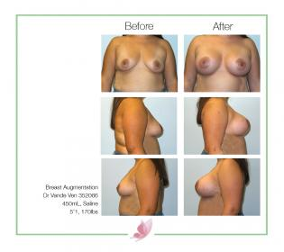dr-vande-ven breast-augmentation 10