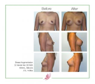dr-vande-ven breast-augmentation 11