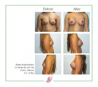dr-vande-ven breast-augmentation 12