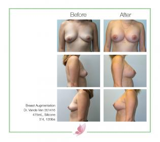 dr-vande-ven breast-augmentation 13