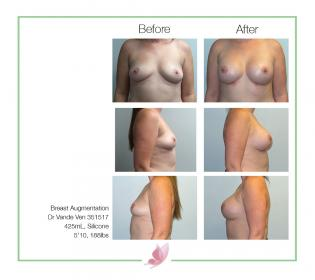 dr-vande-ven breast-augmentation 14