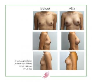 dr-vande-ven breast-augmentation 15