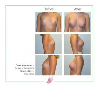dr-vande-ven breast-augmentation 16