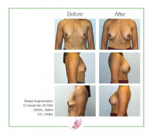 dr-vande-ven breast-augmentation 17