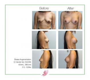 dr-vande-ven breast-augmentation 18