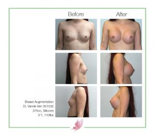 dr-vande-ven breast-augmentation 19