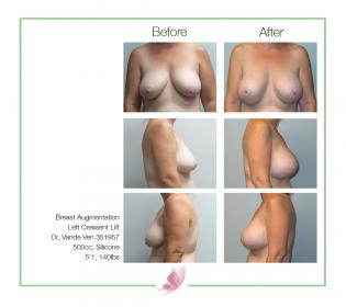 dr-vande-ven breast-augmentation 20