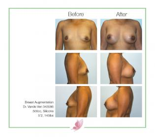 dr-vande-ven breast-augmentation 21