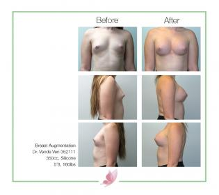 dr-vande-ven breast-augmentation 22