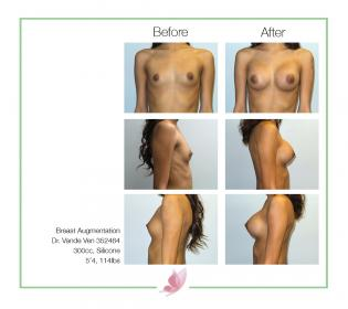 dr-vande-ven breast-augmentation 23
