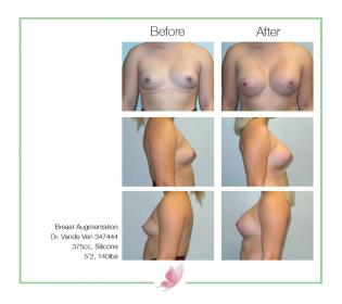 dr-vande-ven breast-augmentation 24