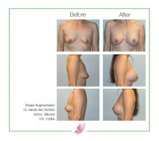 dr-vande-ven breast-augmentation 25