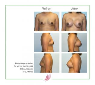 dr-vande-ven breast-augmentation 26