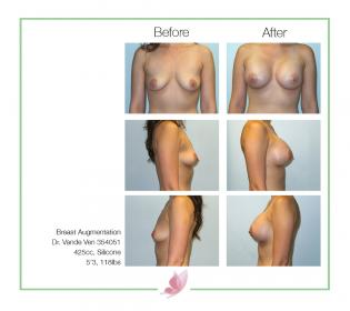 dr-vande-ven breast-augmentation 27