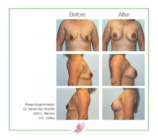 dr-vande-ven breast-augmentation 28