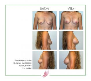 dr-vande-ven breast-augmentation 29
