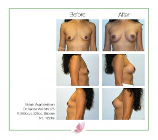 dr-vande-ven breast-augmentation 30