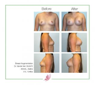 dr-vande-ven breast-augmentation 31