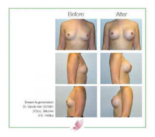 dr-vande-ven breast-augmentation 32