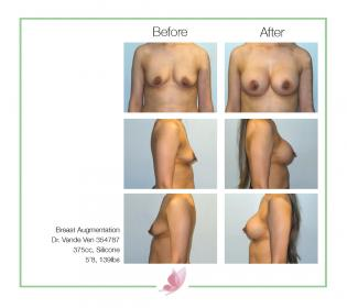 dr-vande-ven breast-augmentation 33