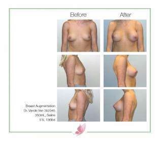 dr-vande-ven breast-augmentation 34