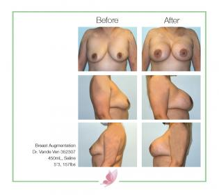 dr-vande-ven breast-augmentation 35