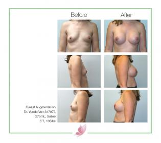 dr-vande-ven breast-augmentation 36