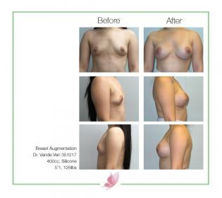 dr-vande-ven breast-augmentation 37