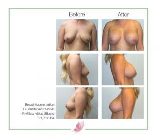 dr-vande-ven breast-augmentation 38