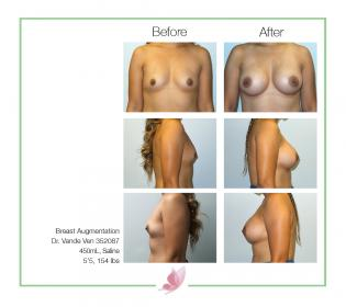 dr-vande-ven breast-augmentation 39