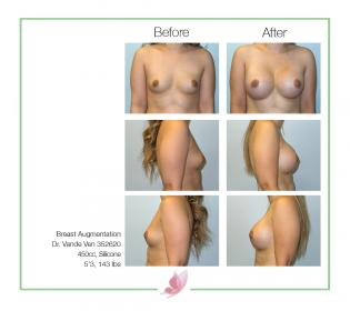 dr-vande-ven breast-augmentation 40