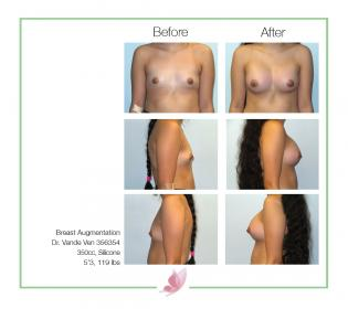dr-vande-ven breast-augmentation 41