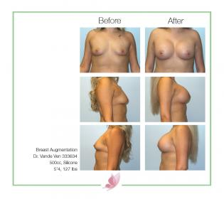 dr-vande-ven breast-augmentation 42