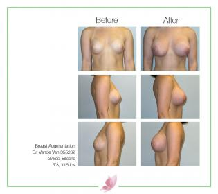 dr-vande-ven breast-augmentation 43