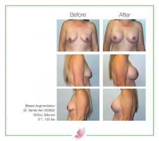 dr-vande-ven breast-augmentation 44