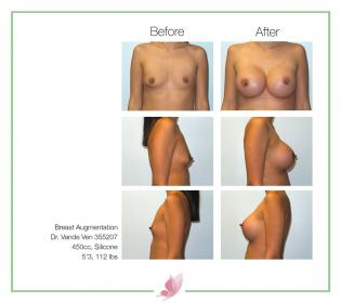 dr-vande-ven breast-augmentation 45