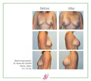 dr-vande-ven breast-augmentation 46
