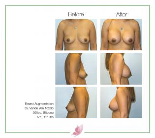 dr-vande-ven breast-augmentation 47