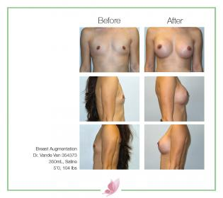 dr-vande-ven breast-augmentation 48