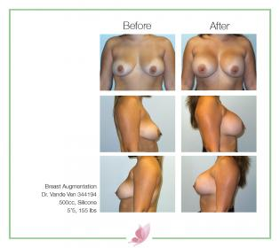 dr-vande-ven breast-augmentation 49