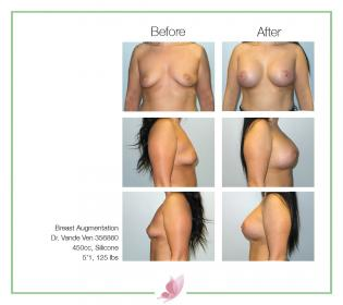 dr-vande-ven breast-augmentation 50