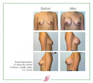 dr-vande-ven breast-augmentation 51