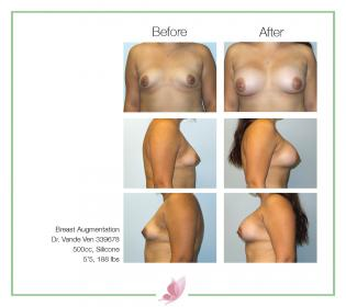 dr-vande-ven breast-augmentation 52