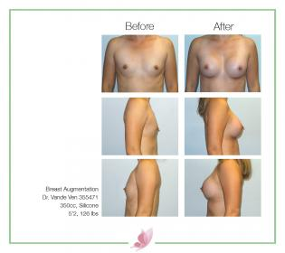 dr-vande-ven breast-augmentation 53