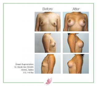 dr-vande-ven breast-augmentation 54