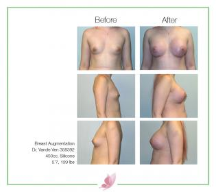 dr-vande-ven breast-augmentation 55